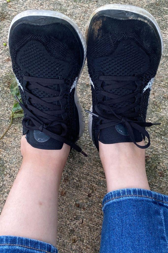 左足の踵を骨折した直後、くるぶし周りが腫れ始めている