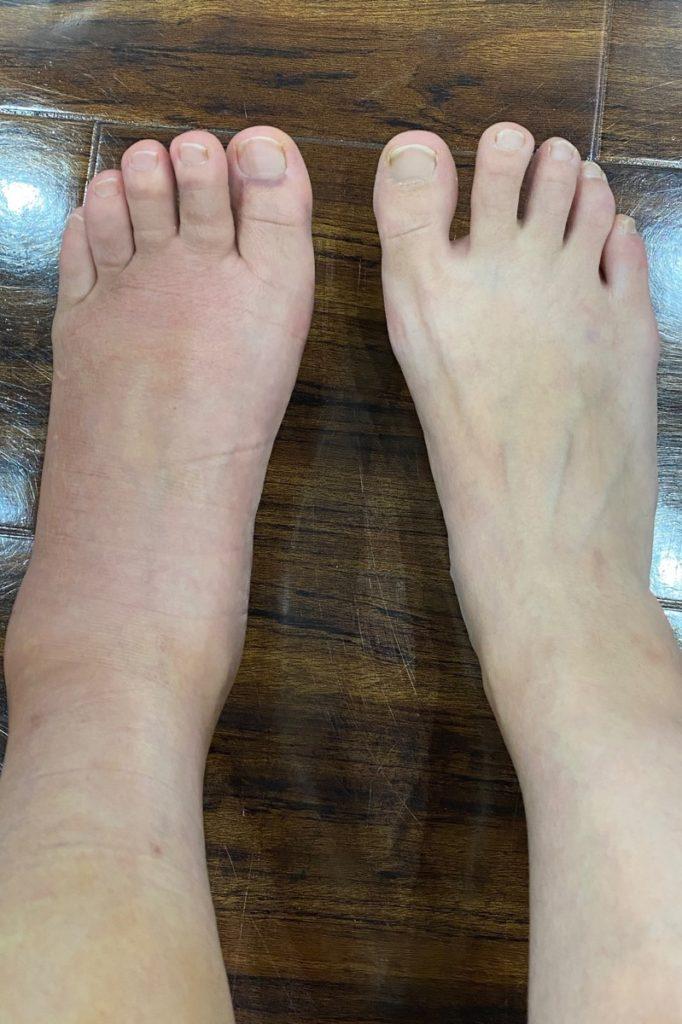 左足の踵を骨折して2週間から3週間ほどの写真