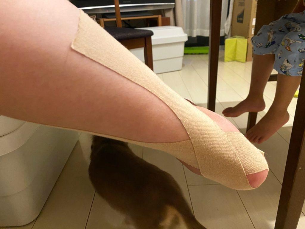 左足の踵骨骨折のリハビリで、脹脛サポートのために巻いてもらったテーピング
